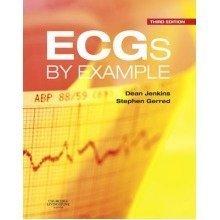 Ecgs by Example